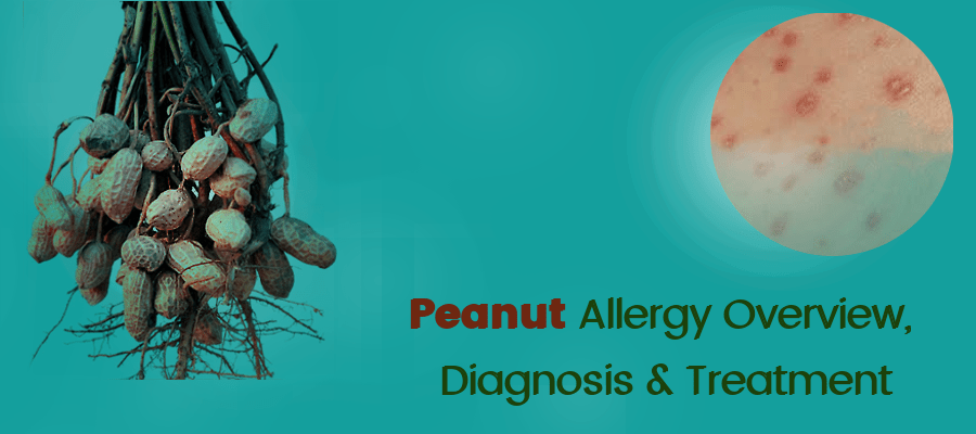 Peanut-Allergy-Overview,-Diagnosis- and- Treatment